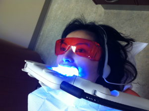 Plasma Arc Light (PAC) that can be used for both fast-curing and chair-side dental bleaching