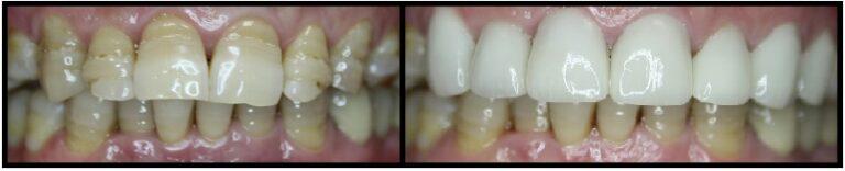 before and after dental veneers case 2