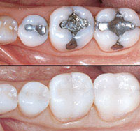Example of real tooth fillings